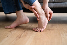 Woman Feet Callus And Injured Foot