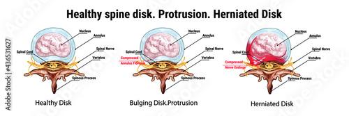 Fotografie, Obraz Healthy spine disk