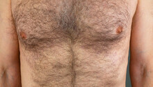 A Man With A Hairy Male Breast Close-up. Long Chest Hair