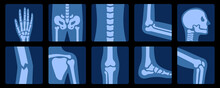 X-ray Of Bones. X-rays Examination Of Human Joint Anatomy. Medical, Educational And Science Illustration.