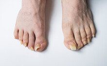 Man's Feet With Long Nails Infected By Fungus