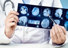 Brain. Female Doctors Hand Pointing At X-ray Or MRI Medical Imaging With A Head And Neck Condition. Spinal Cord, Blood Vessels. Neuro Medicine. Healthcare And Medicine. Brain Tissues.