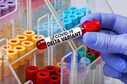 Doctor epidemiologist holding blood tube for test detection of virus Covid-19 Delta Variant with positive result Fototapeta
