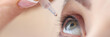 Woman drips eye drops into her eyes