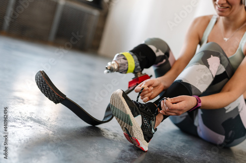 Young sportswoman with prosthesis tying her shoelaces