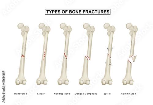 Fotografiet Types of bone fractures. Femoral Shaft fracture