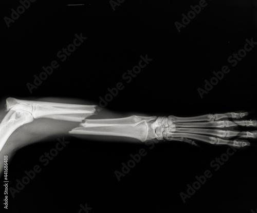 Fotografija Dog leg fracture xray