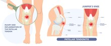 Patella Pain Cap Knee Tear Torn Injury Swelling Bone Leg Exercise Muscle Jumper's Runner's Bursitis Tendon Tibia Anterior Cruciate Ligament ACL Sport  Femur Painful It Band Rupture Trauma Joint Cyst