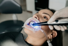 Dentist Using Dental Curing Light During Teeth Treatment
