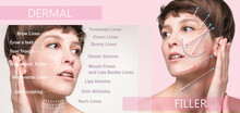 Dermal Filler Treatments In Your 40s .Hyaluronic Acid Injections For Specific Areas.Correct Wrinkles
