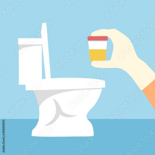 Fotografie, Obraz Hand with glove holding urine sample for medical test in toilet background vector illustration