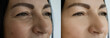 woman face wrinkles before and after treatment nt