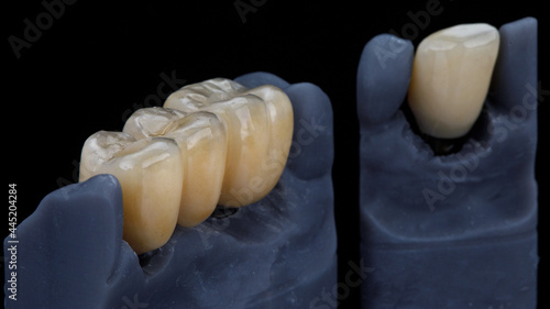 Obraz na plátně milled zirconium dental crowns on models, composition on a black background