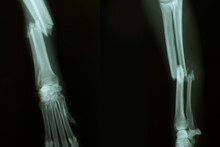 X-ray From Broken Foreleg (ulna And Radius) Of A Dog. Front View (left) And Side View (right)