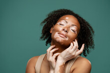 Young Woman With Vitiligo Posing Wit Her Eyes Closed At Camera
