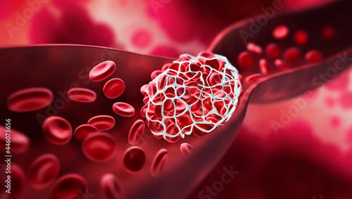 Obraz na plátně Blood clot blocking a blood vessel