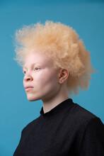 Studio Portrait Of Albino Woman