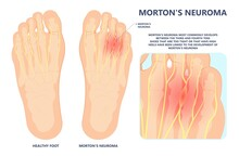 Morton's Neuroma Pain Foot Ball Toe Shoe Tissue Nerve High Heel Tight Lump Injury Sport Trauma Deformity Hammer Bone Spurs Flat Feet Arches Hallux Valgus Claw Mallet Pes Planus Cavus Cyst Tear Wear