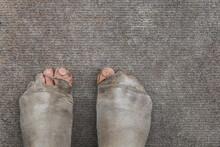 Dirty Male Feet In Leaky Worn Out Socks. Poverty. Background.