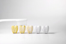 Discoloration Teeth, Cure Yellow Teeth This Can Be Done By Starting With Oral And Dental Care Cleaning By Brushing Your Teeth Properly At Least Twice A Day Or Brushing Your Teeth After Every Meal