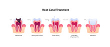 Tooth Decay And Root Canal Treatment Chart. Vector Biomedical Illustration. Cross Section. Teeth In Gum Feeling Steps Isolated On White Background. Design For Dental Oral Healthcare, Dentistry