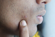 Close Up Of Young Man Face With Skin Problem .