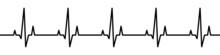 Heartbeat Line