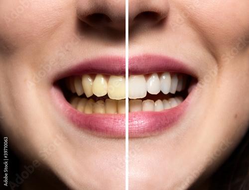 Fotografija Clean Teeth