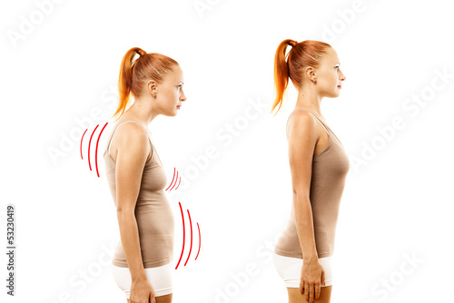 Young woman with position defect and ideal bearing