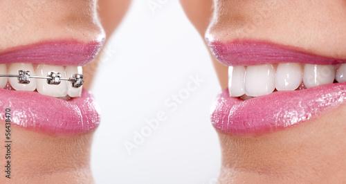 teeth with braces #56438470