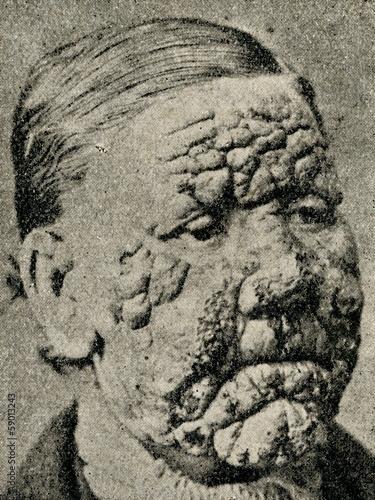 Fotografia Leprosy patient