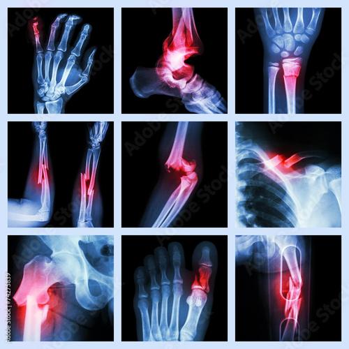Obraz na plátne Collection of bone fracture