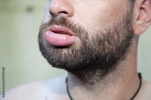 Fotografia Swollen lip