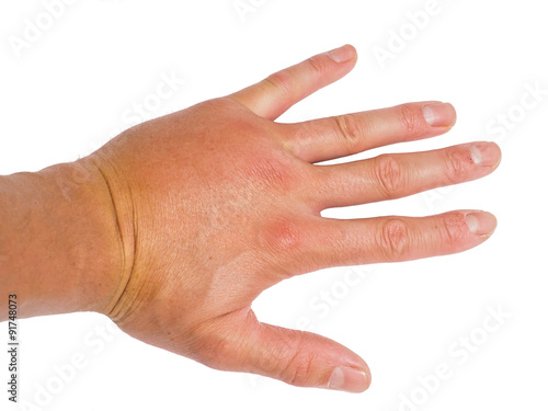 Obraz na płótnie Male person showing swollen knuckles on left hand isolated on wh