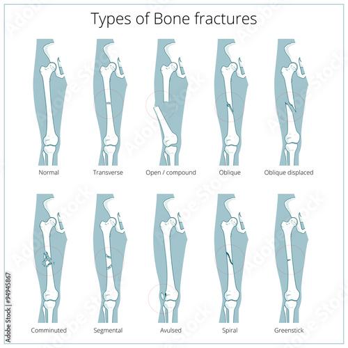 Fotografia Types of bone fractures medical educational vector
