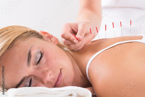 Photographie Retour Hand Performing Acupuncture Therapy Le client
