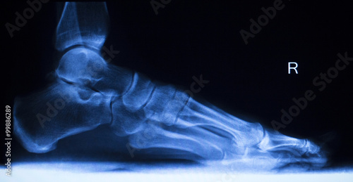 Wallpaper Mural Foot and toes injury x-ray scan