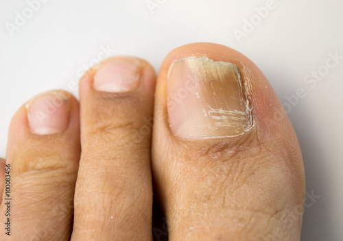Stampa su Tela fungal nail infection