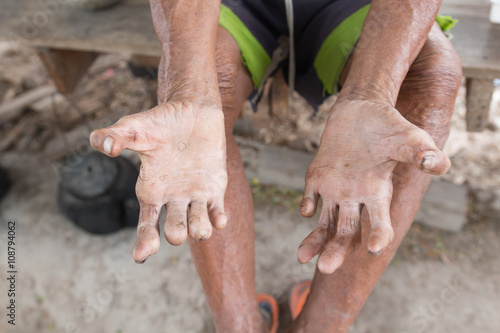 Stampa su Tela Hansen's disease,closeup hands of old man suffering from leprosy
