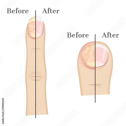 Carta da parati Fungal infection of the nails Illustration Before and After