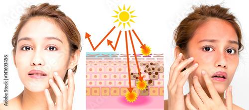 woman using sunscreen and woman getting sunburned