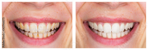 Photo Whitening - Dental care, a beautiful smile and teeth whitening treatment before and after