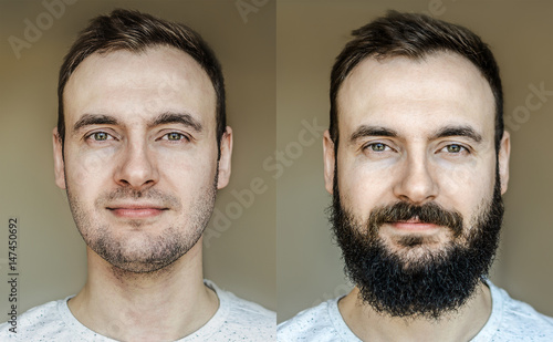Fotografia A collage of a beautiful portrait of a man with a full beard and no beard after shaving with light stubble