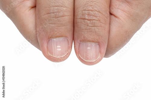 Fotografiet White spots and Vertical ridges on the fingernails symptoms deficiency vitamins
