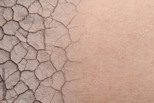 Billede på lærred dry woman skin texture with dry soil
