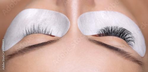 Eyelash removal procedure close up Fototapeta