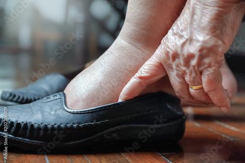 Fotografia Elderly woman swollen feet putting on shoes
