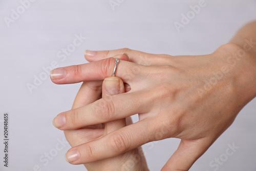 Obraz na płótnie Swollen Hands