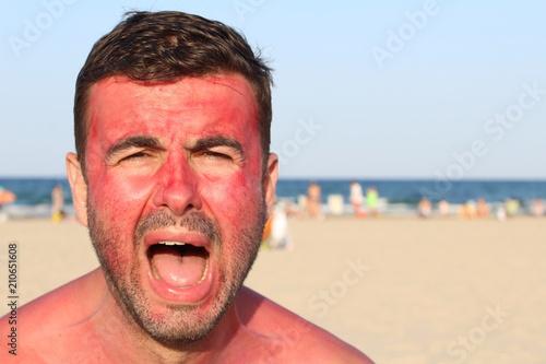 Man overexposing his skin to the sun