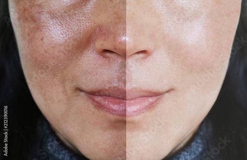 Fototapeta premium Twarz z otwartymi porami i melasma przed i po makijażu lub koncepcji leczenia.